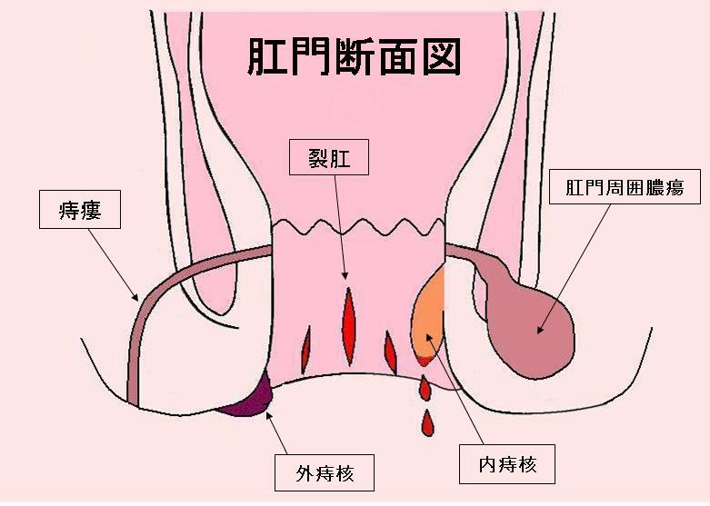 肛門断面図